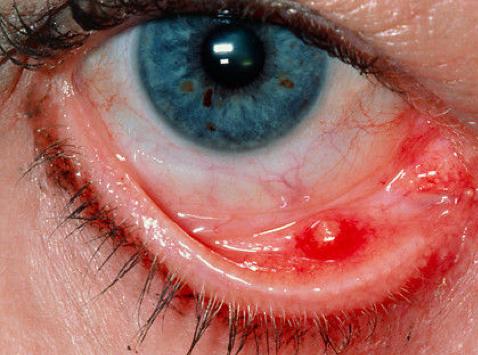 gezwollen ooglid