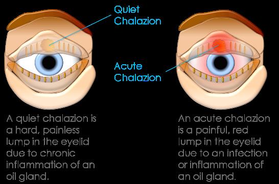 strontje oog behandeling