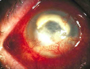 oogontsteking virus